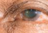 Cataratas y diabetes: el factor que acelera su aparición, cómo detectarlas y tratarlas